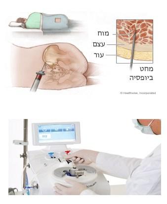 איסוף מוח עצם